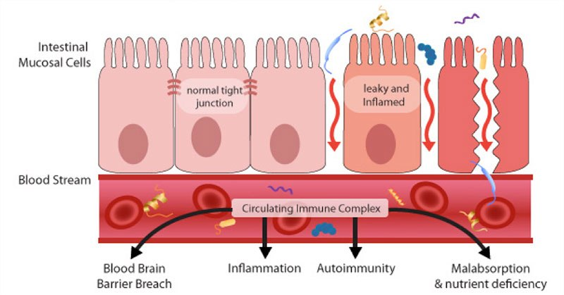 inflammation of epithelium of cell, between cell and cell surface